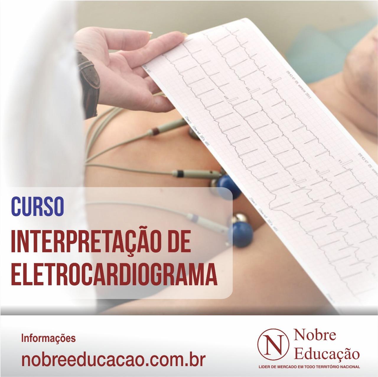 Interpretação de Eletrocardiograma